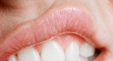 Sram vas je zbog neugodnog zadaha? Ovo su najčešći uzroci