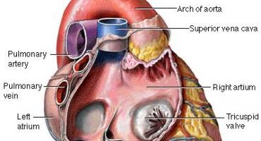 Ugradnja stenta ublažava simptome koronarne bolesti kao i terapija lijekovima