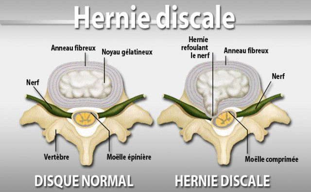 Hernija diska
