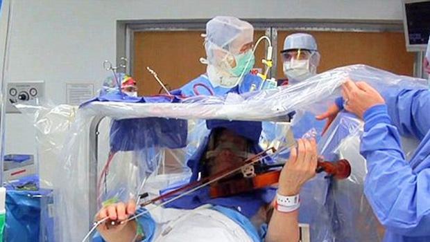 Nevjerojatno: Violinist svirao violinu tijekom operacije mozga!