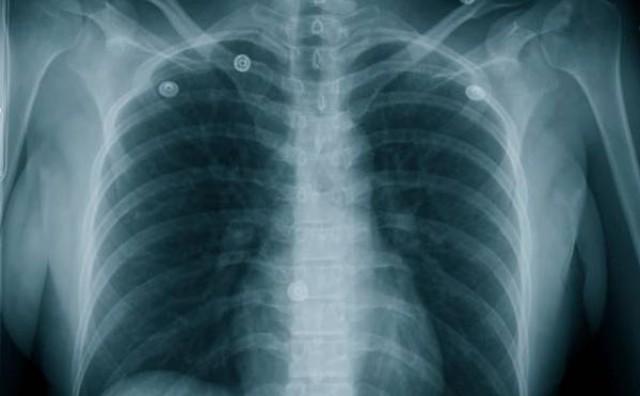 Danas 18. studeni: Svjetski dan kronične opstruktivne bolesti pluća (KOPB )