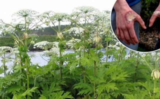 Oprez: Opasna biljka pojavila se i u BiH, ako je pipnete posljedice su užasne