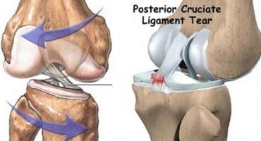 Ozljeda stražnjeg križnog ligamenta