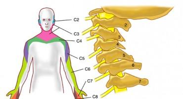 Sindrom vratne kralježnice