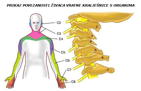 Kompresija ili pritisnut živac u vratnom dijelu kralješnice