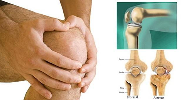Bol u koljenima