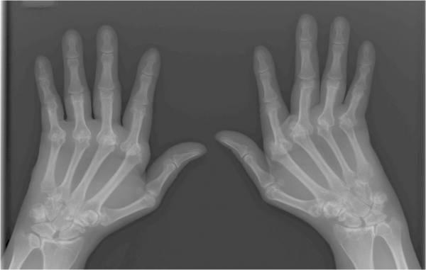 Što je reumatoidni artritis?