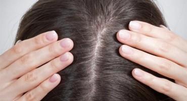 Ako se mučite se s peruti i opadanjem kose, nemojte zaboraviti na pravilnu njegu vlasišta