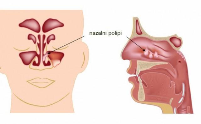 Polipi u nosu