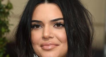 Kendall Jenner opet na udaru: 'Definitivno je stavila filere u usne i obraze'
