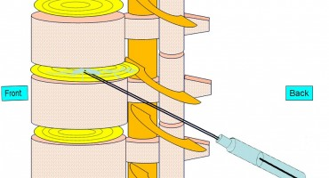 Liječenje cervikalne,torakalne ili lumbalne hernije diska primjenom DiscoGel-a