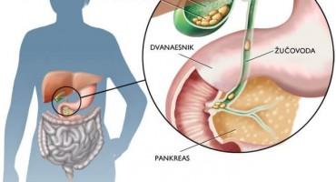 Kolecistitis je upala žučnog mjehura (žučnjaka)