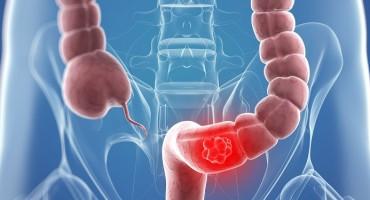 Pet simptoma raka debelog crijeva koji često promaknu