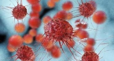 Ove 33 stvari znanost je povezala s karcinomom