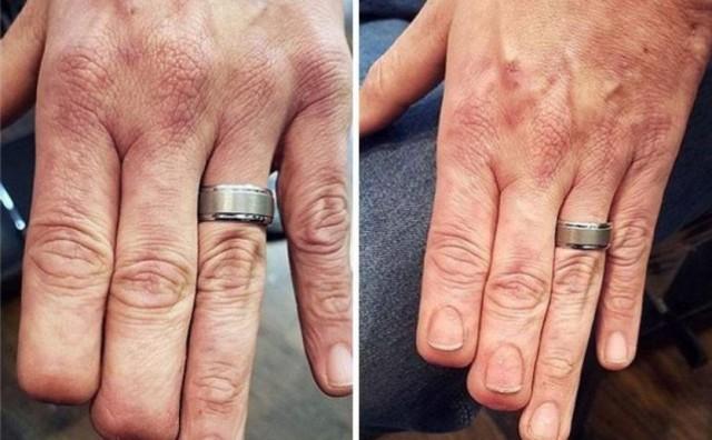Pogledajte kako su ovi ljudi svoje ožiljke pretvorili orginalne tetovaže