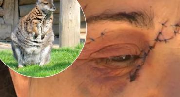 Ženu u Australiji prebio golemi klokan