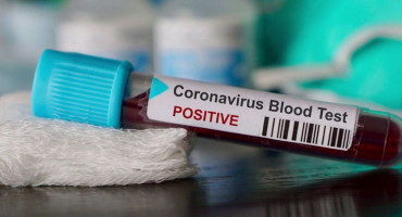 KINESKI PREDSJEDNIK PORUČUJE TRUMPU Kina je sposobna pobijediti epidemiju virusa