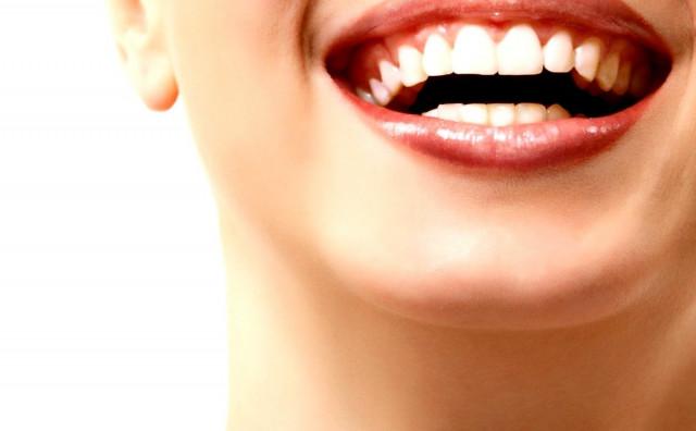 Pet neprijatelja lijepog osmijeha