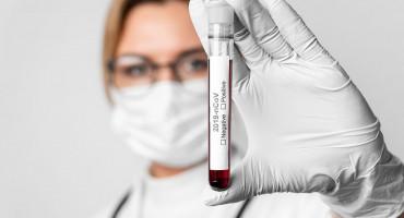 ŽZH Muškarac iz Gruda pozitivan na koronavirus, tri osobe se oporavile