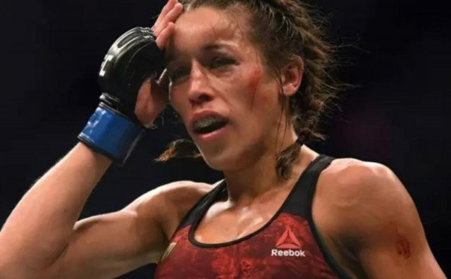 Pogledajte lice Poljakinje tjedan dana nakon najboljeg UFC ženskog meča ikada