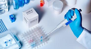 BILA 215 MARAKA Cijena komercijalnih testova u Federaciji će pasti ispod 150 maraka